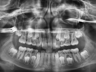 Dental X-rays: Why are they necessary at an orthodontic visit?