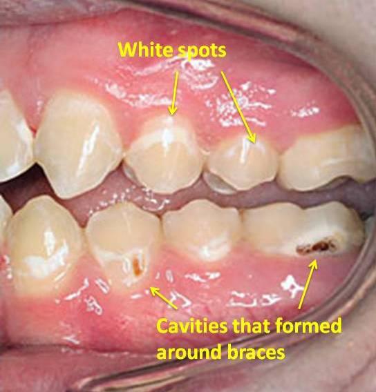 img-cavities.jpg