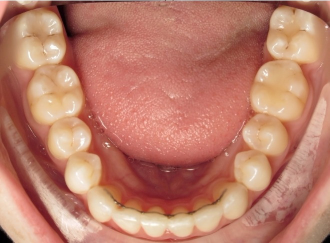 Permanent retainer after Invisalign at VCO Orthodontics