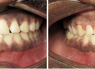 Gaps & Spaces? Use Invisalign or braces!