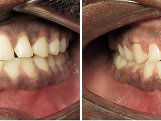 Gaps & Spaces? Use Invisalign or braces!