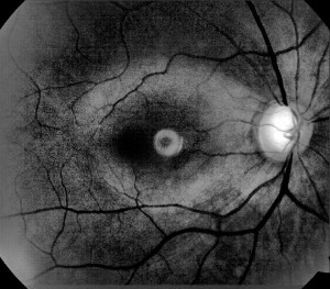 Instituto médico-quirúrgico de oftalmología. Gabinete tecnológico del glaucoma