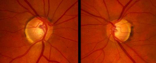 Glaucoma de tensión normal