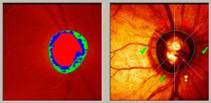 Glaucoma: diagnóstico por imagen
