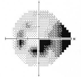 BLOG-tensión5.jpg