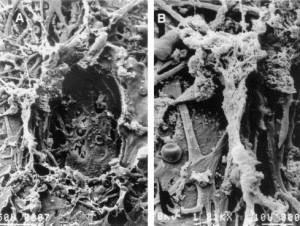 BLOG-trabeculoplastia2.jpg