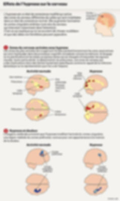 Effets de l'hypnose.jpg