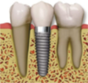 dental+implants.jpg