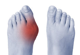 Female foot with bunion on big toe.jpg