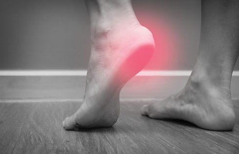 Closeup of a female foot heel pain with