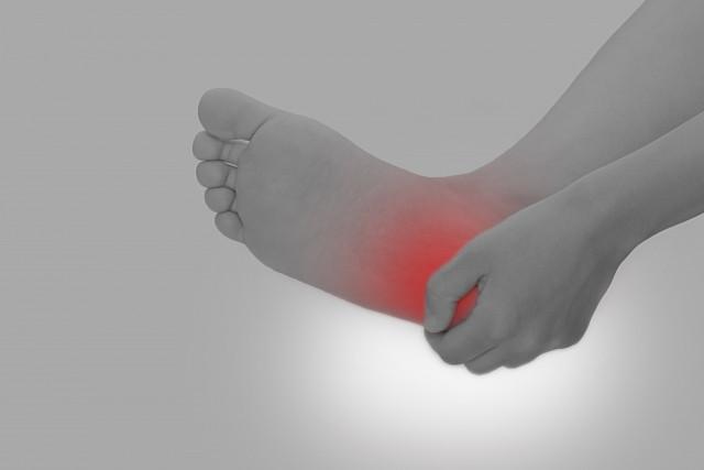 足底筋膜炎 かかとの痛み
