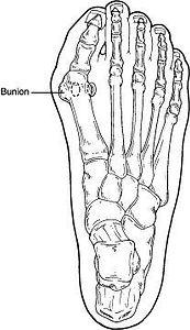 Bunions1-256122-640w.jpg