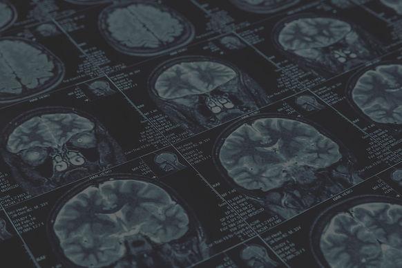 brain-scan-testing-scaled.jpg