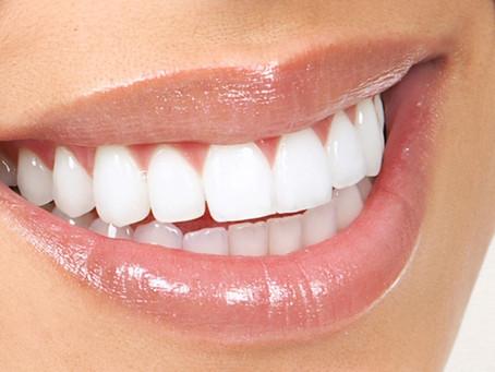 Tooth Whitening Raffle ✨🦷