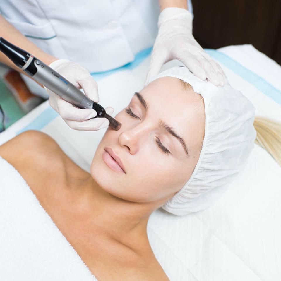 Dermapen Microneedling Treatment