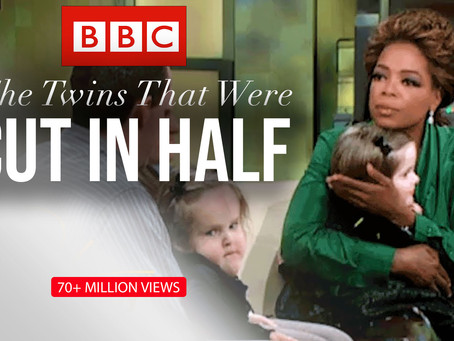 "70+ Million Views for BBC's ""Conjoined Twins"" Directed by Sohrab Mirmont"