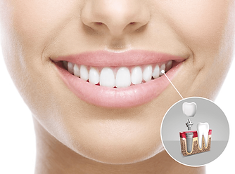 implante_dental_clinident_cordoba.png