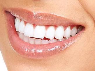 Kit-De-Blanchiment-Dentaire-À-Domicile-5