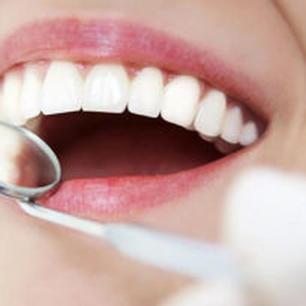 Higiena i Profilaktyka Stomatologiczna