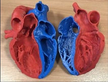 3d-printing-at-liverpool-heart-and-chest
