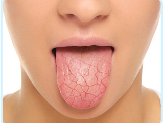 Dry Mouth Causes & Treatment