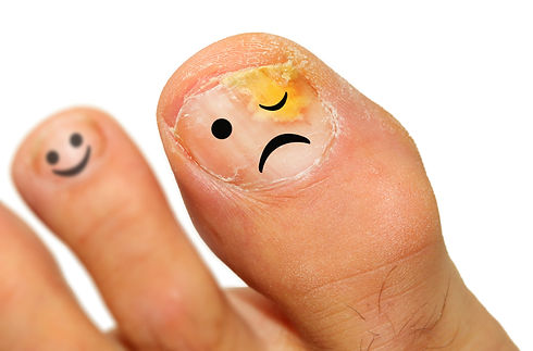 bigstock-Onychomycosis-fungal-infection-