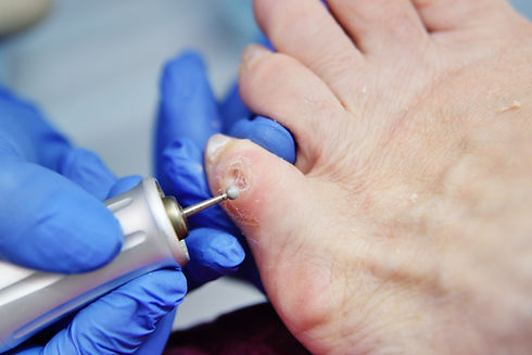 bigstock-Excision-Of-Calluses-On-The-To-