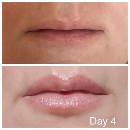 Lip Blush winner wanted a fuller lip wit