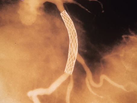 Heart Stents Don't Work?