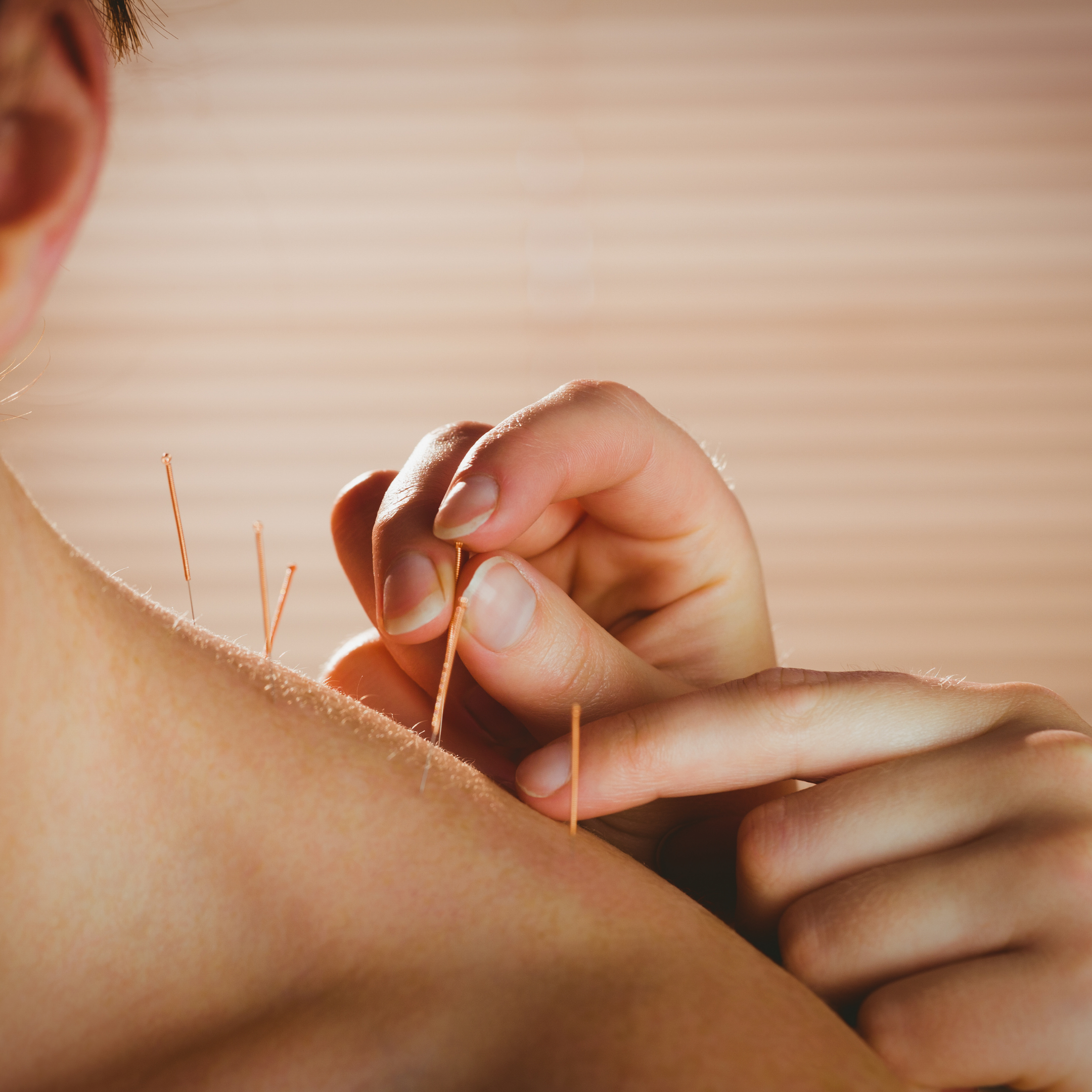 Functional Integrated Dry Needling
