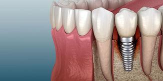 peri-implantitis-graphic-1024x512.jpg