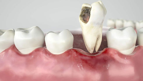 tooth extraction image.jpeg