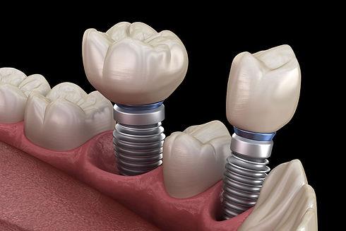 dental-implants-model-2.jpeg