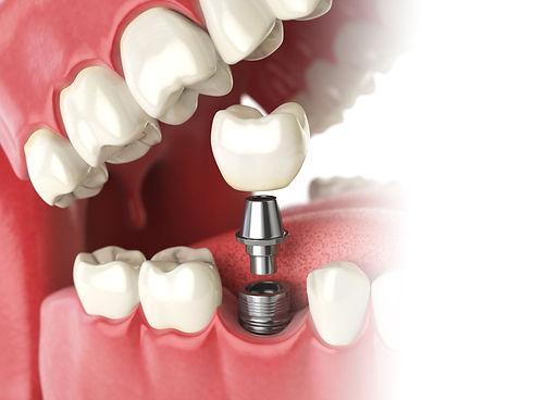 implantlanding.jpg