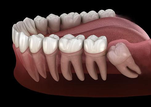 Wisdom-Teeth-Removal.jpeg