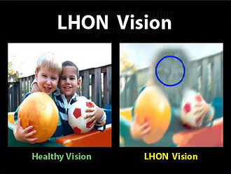 Pictures of healthy vision and LHON vision