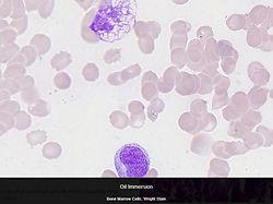 Oil_Bone Marrow Cells.JPG