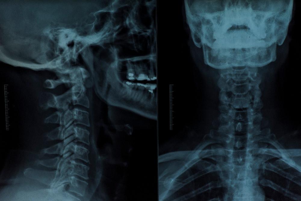 Slutak Chiropractic Spine XRay