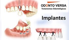 Implantes - Osasco
