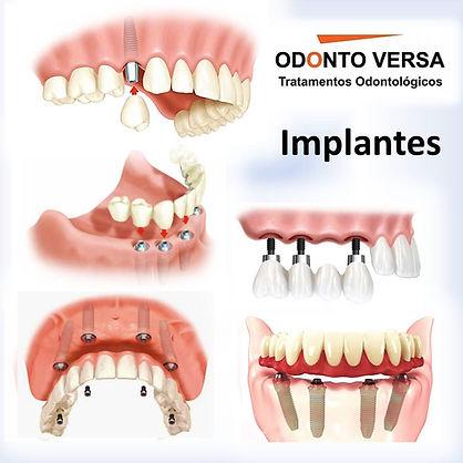Implante Osasco