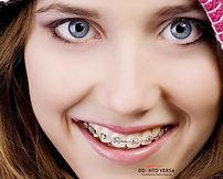 Aparelho Dentário - Osasco