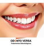 Clareamento Dentário - Osasco