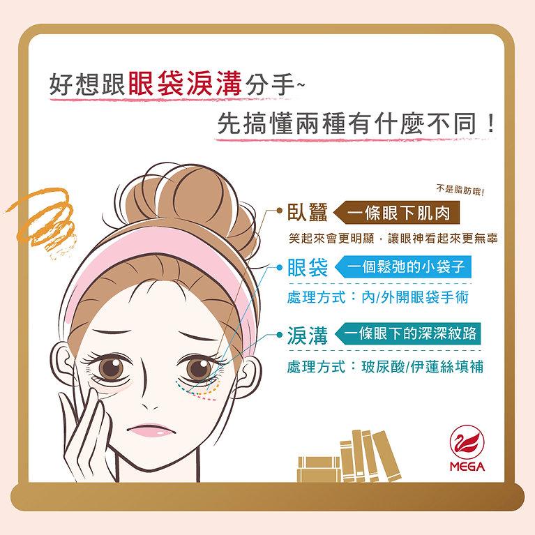 臥蠶眼袋淚溝有什麼不同