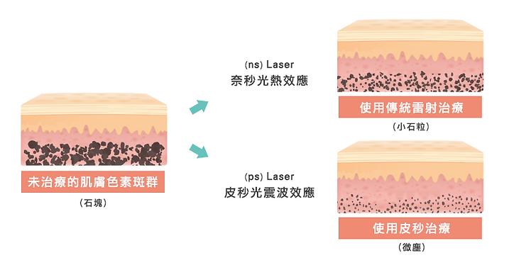 皮秒功效大解析:改善斑點、色素沉澱、毛孔、凹疤