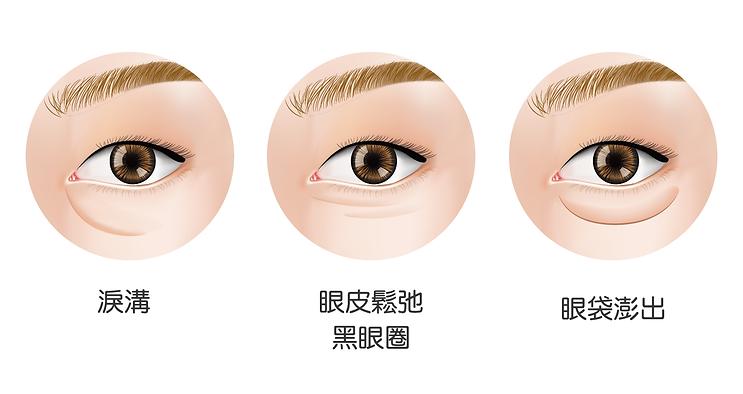 眼袋手術適應症-淚溝、眼皮鬆弛、黑眼圈、眼袋