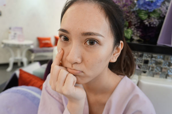 美加醫美 眼袋手術案例