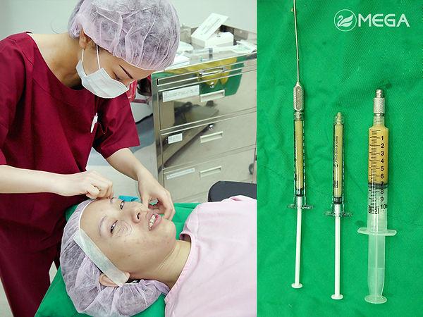 自體脂肪豐頰案例手術過程
