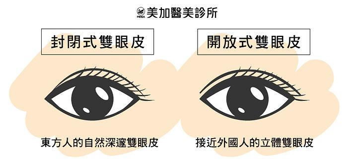 封閉式雙眼皮 開放式雙眼皮