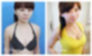 breastss5.jpg