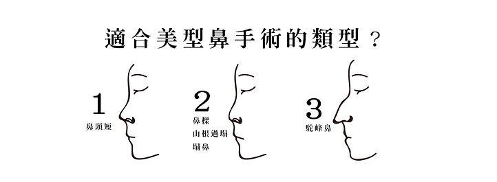 適合美型鼻手術的類型